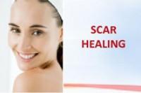 Scar Healer